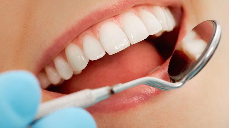 How Long Do White Dental Fillings Last?