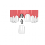 How Do Dental Implants Compare To Natural Teeth?