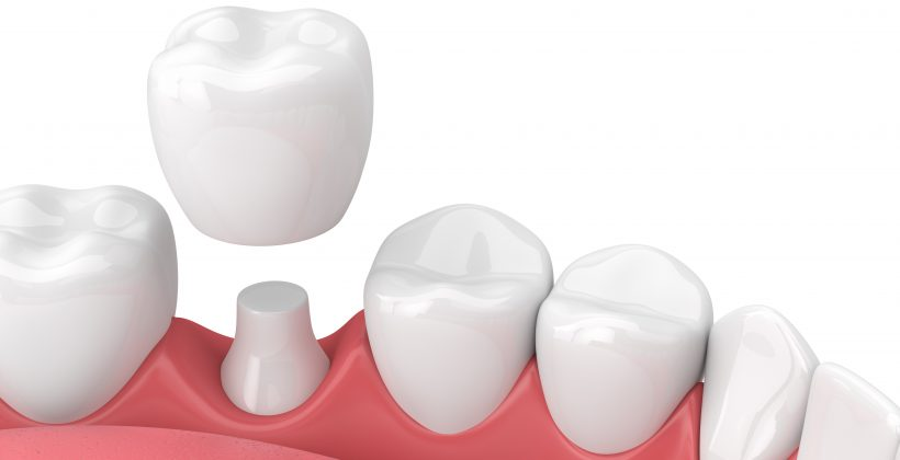 Do I Need a Dental Crown?