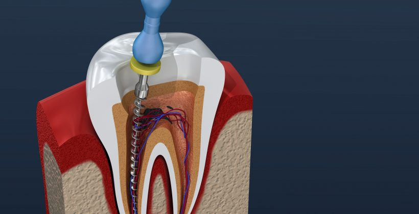 Debunking Root Canal Myths