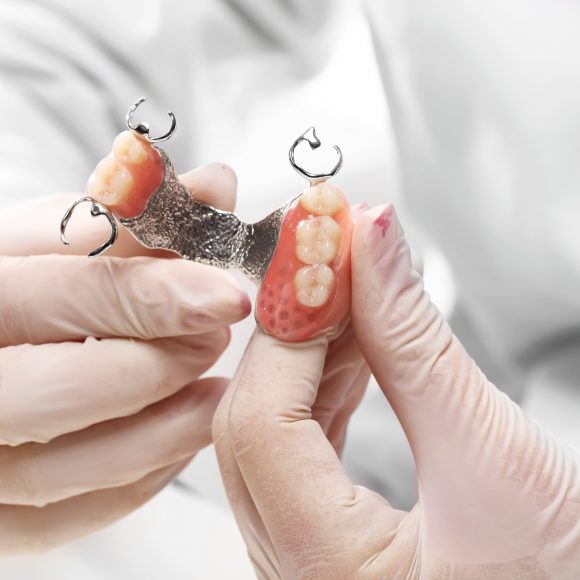 What Are My Options for Teeth Replacement?