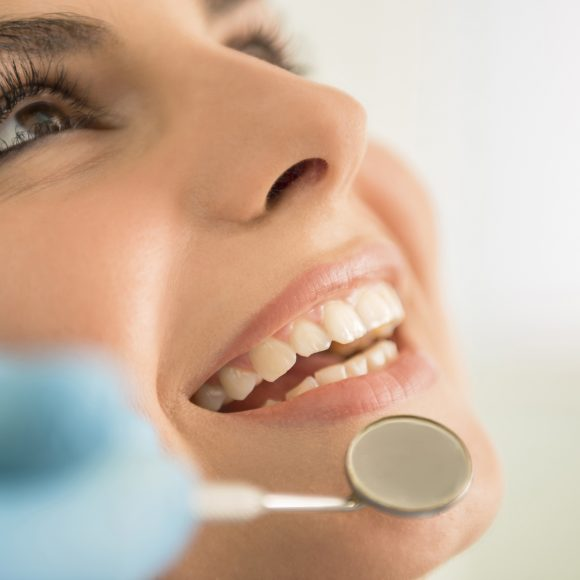 Dental Implant FAQ's