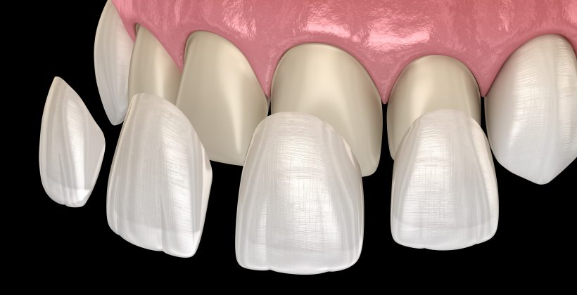 5 Things To Know Before Getting Veneers